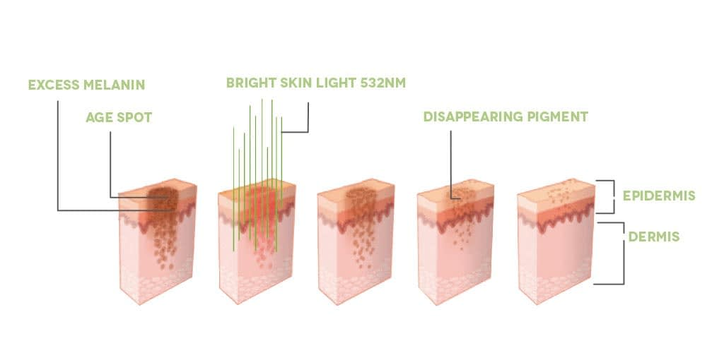 Dr. Muller Bright Skin Light impact on skin