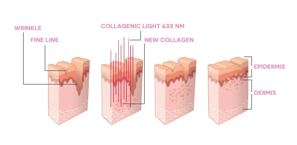 Dr. Muller Collagenic Light impact on skin