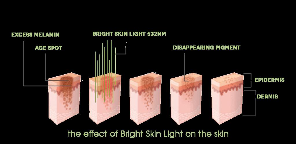 My Dr. Muller Bright Skin Light impact on skin