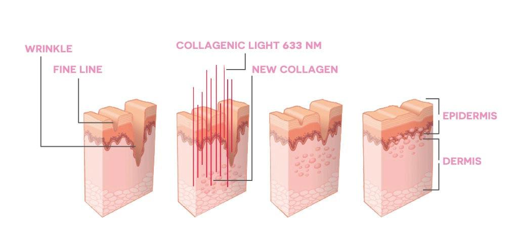 Dr. Muller Collagenic Light impact on skin