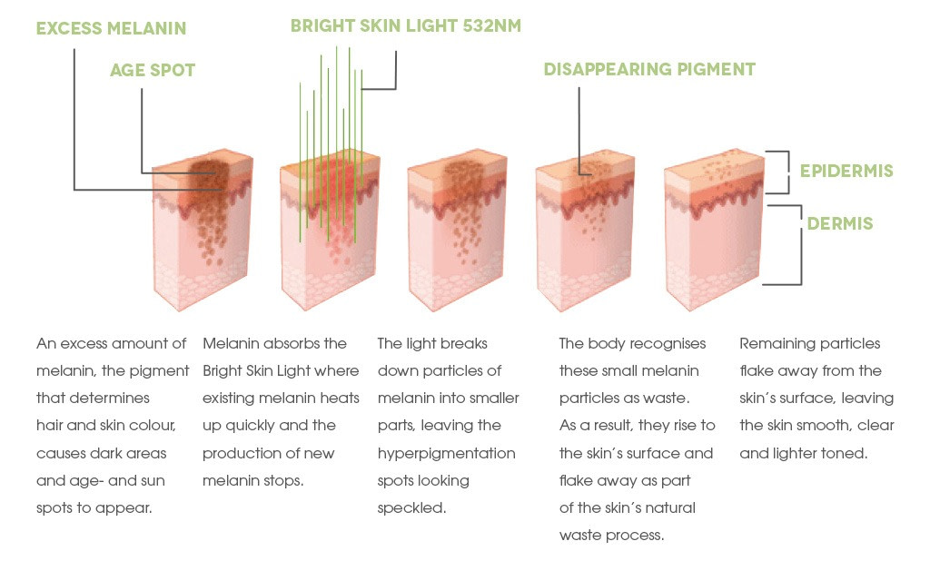 Dr. Muller Bright Skin Light with explanation
