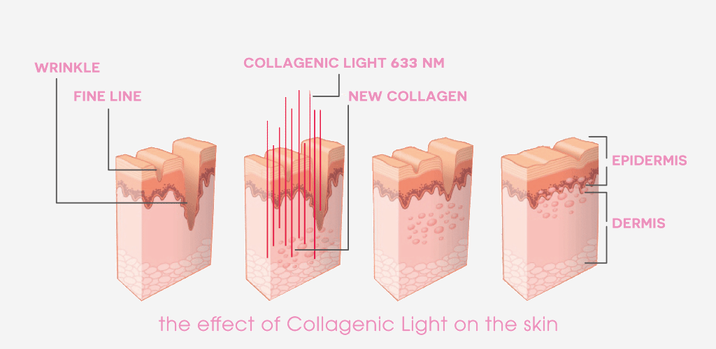 Dr. Muller the effect of collagenic light on the skin
