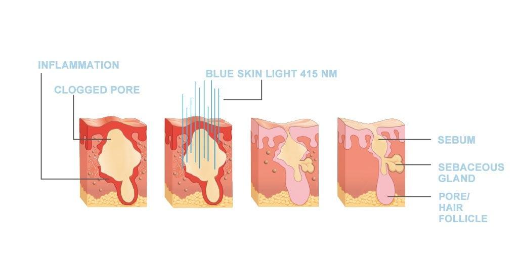 Dr. Muller Blue Skin Light impact on the skin