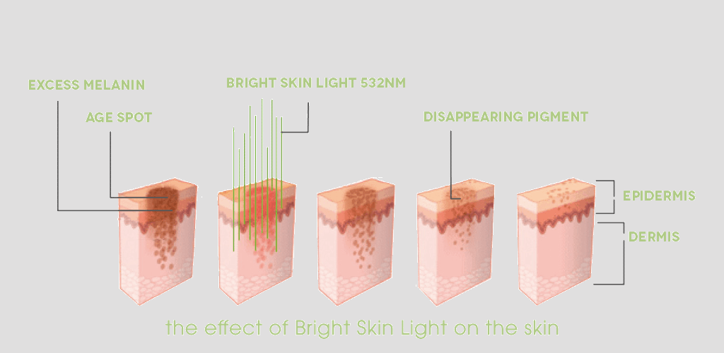 My Dr. Muller Bright Skin Light impact on skin